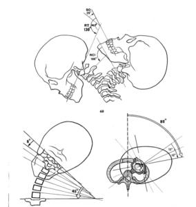 Cervicalgia nell'idrokinesiterapia