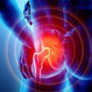 Tutti i sintomi del dolore sciatico