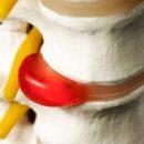 Ernia del Disco: sintomi e cura
