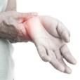 Artrosi delle mani (rizoartrosi): sintomi e riabilitazione