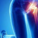 Coxalgia: sintomi e cura