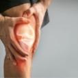 Condropatia femoro rotulea: sintomi e cura