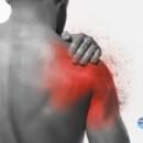 Calcificazione alla spalla: sintomi e cura